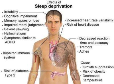 sleep-depervation